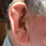 Hearing loss could lead to depression