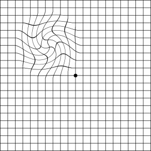 Distorted Amsler grid